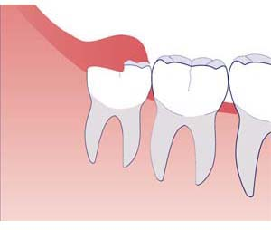 Partial eruption wisdom tooth